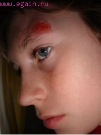 Травмирование в скейтбординге